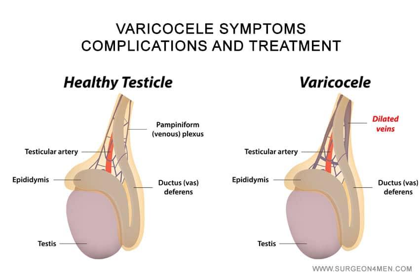 Varicocele