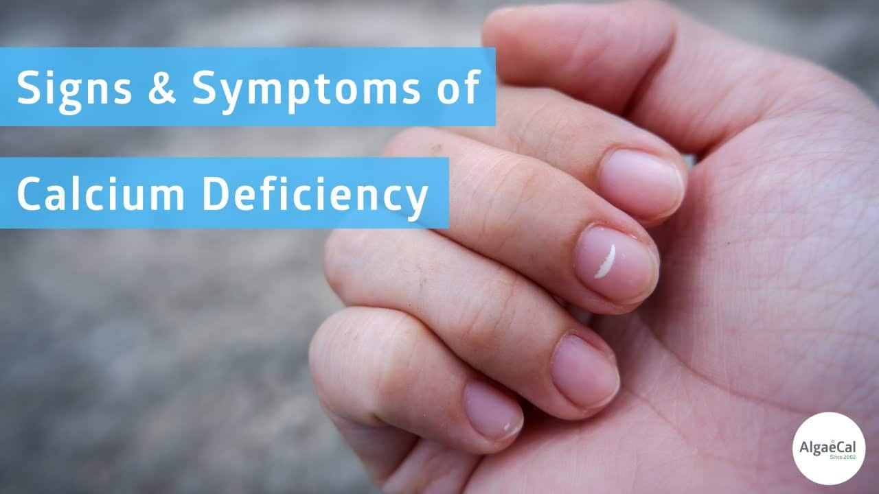 Calcium Deficiency Hypocalcemia