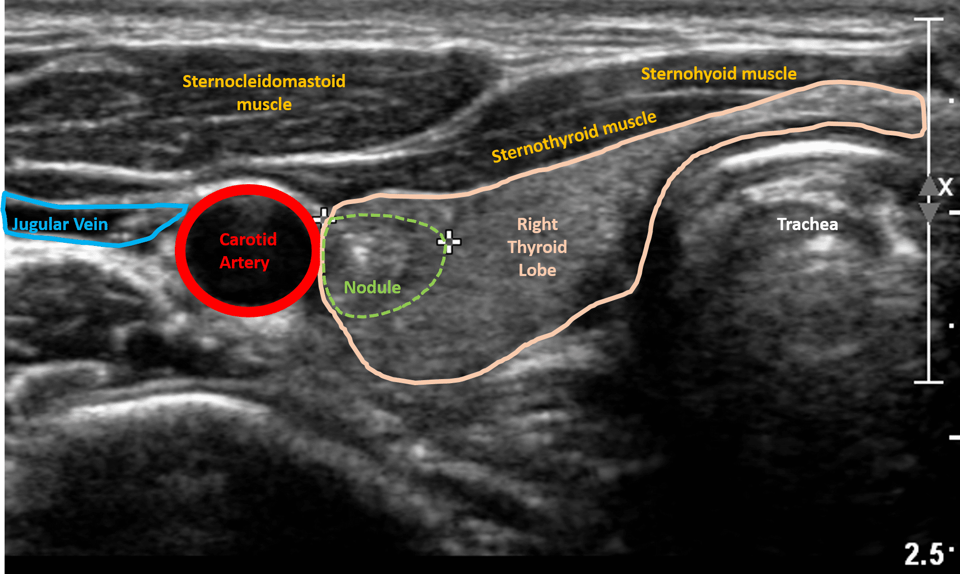 Thyroid Ultrasound