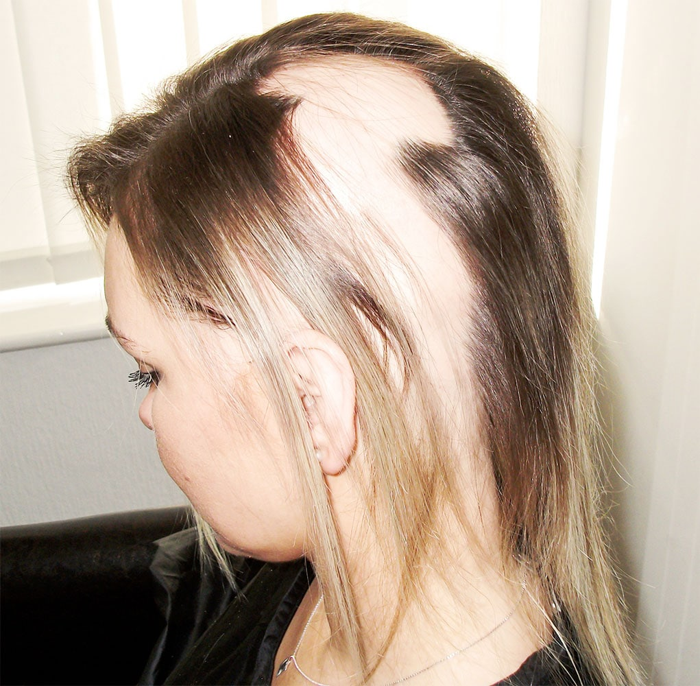 Alopecia Areata in women