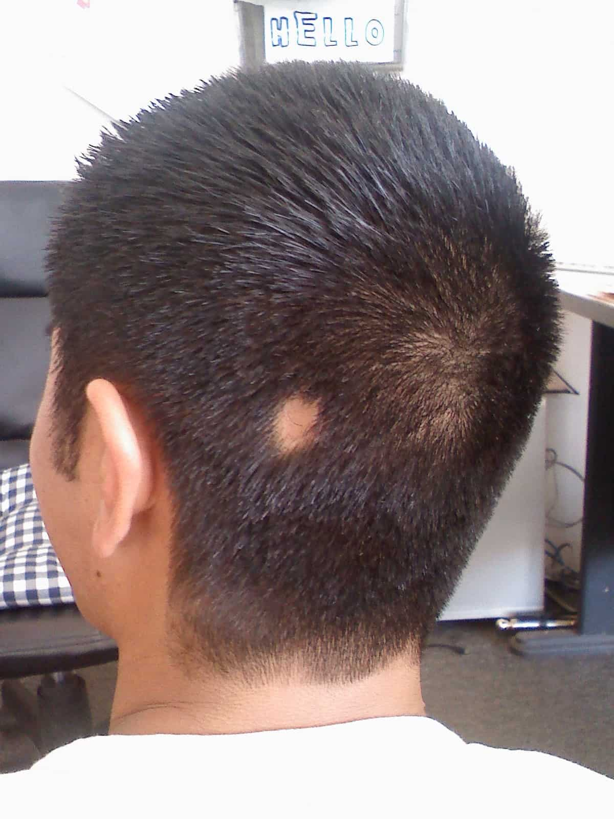 Alopecia Areata in men