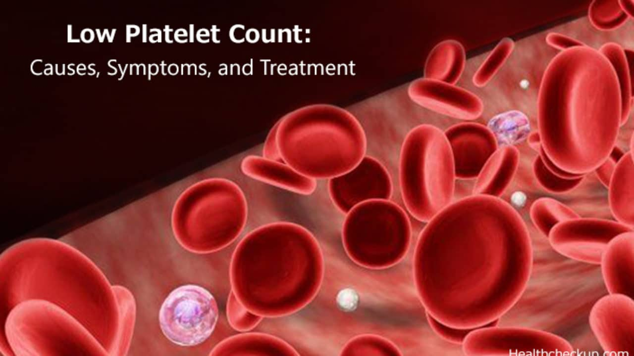Low Platelet Count Thrombocytopenia