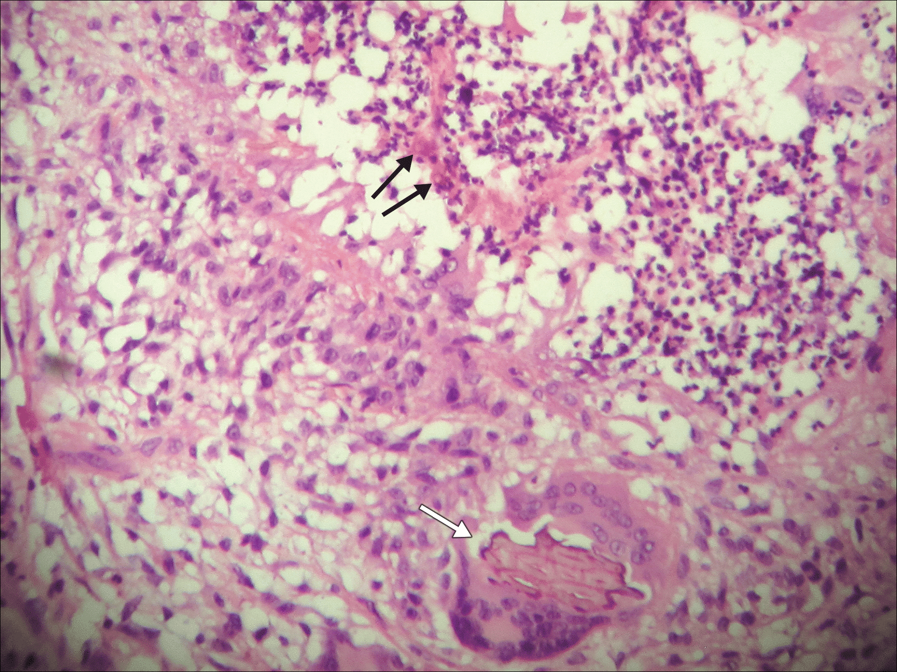 Chromoblastomycosis