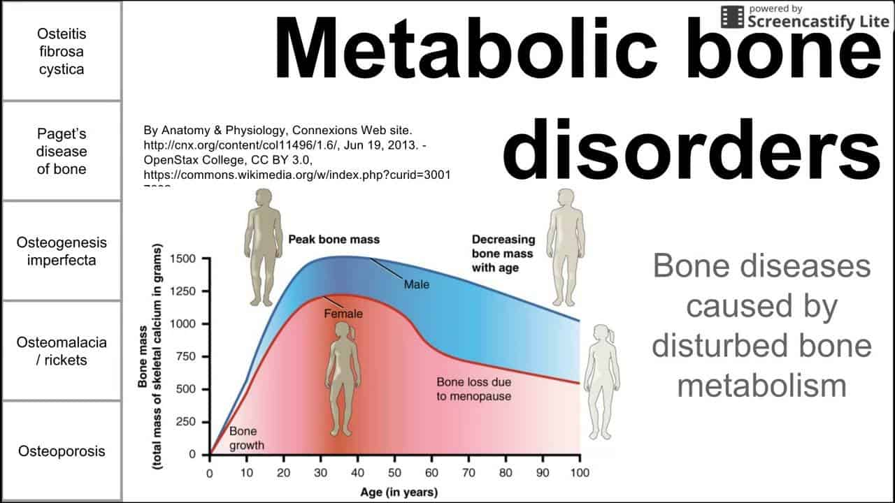 Metabolic Bone Diseases
